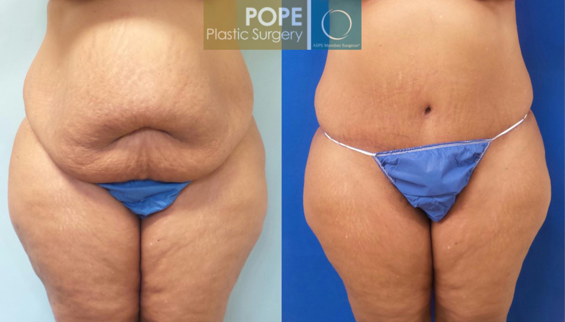 Tummy Tuck Case 184 Before & After View #1 | Orlando, FL | Pope Plastic Surgery